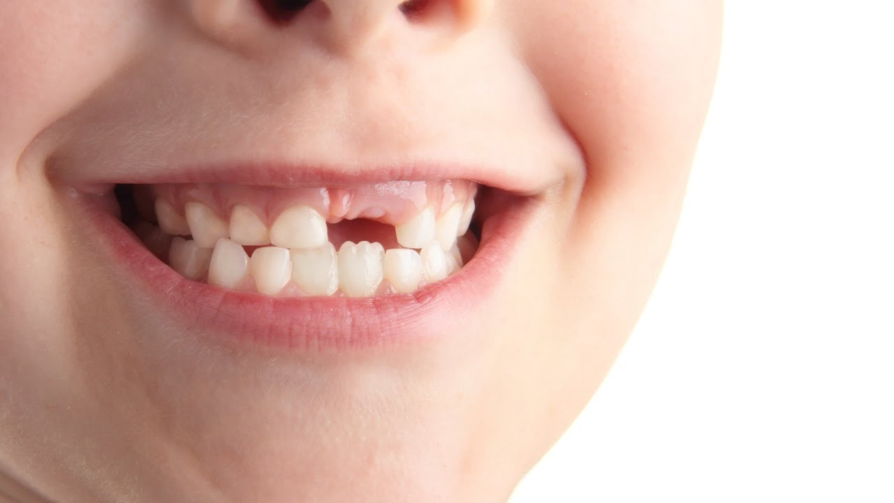 10 Facts about teeth