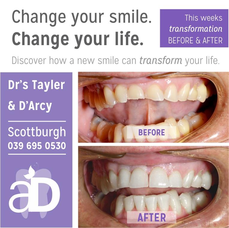 Restore your smile